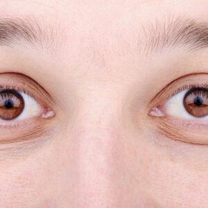 closeup shot of man's eyes